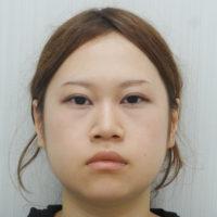 下眼瞼下制術・小鼻縮小施術前写真
