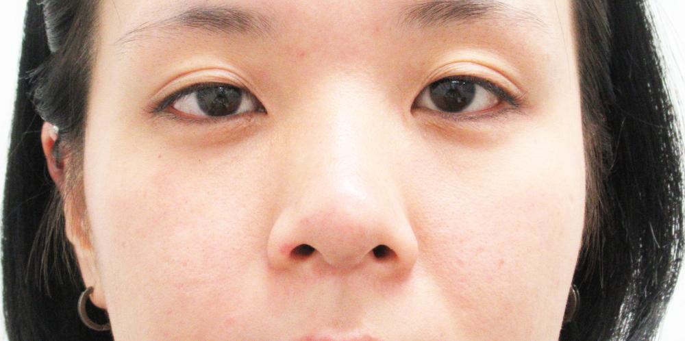 小鼻縮小施術前