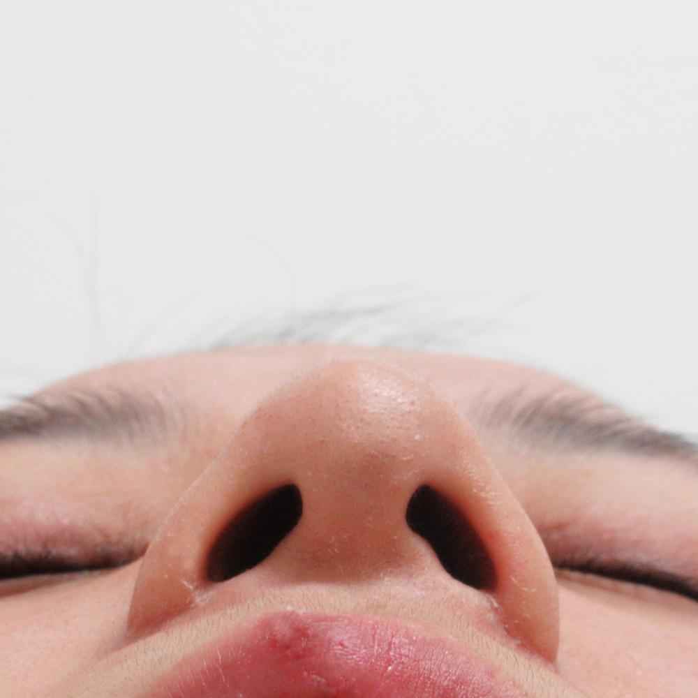 小鼻縮小術後3カ月目