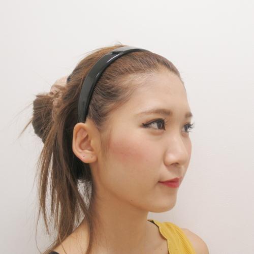 鼻のプロテーゼ・鼻尖縮小・耳介軟骨移植施術前