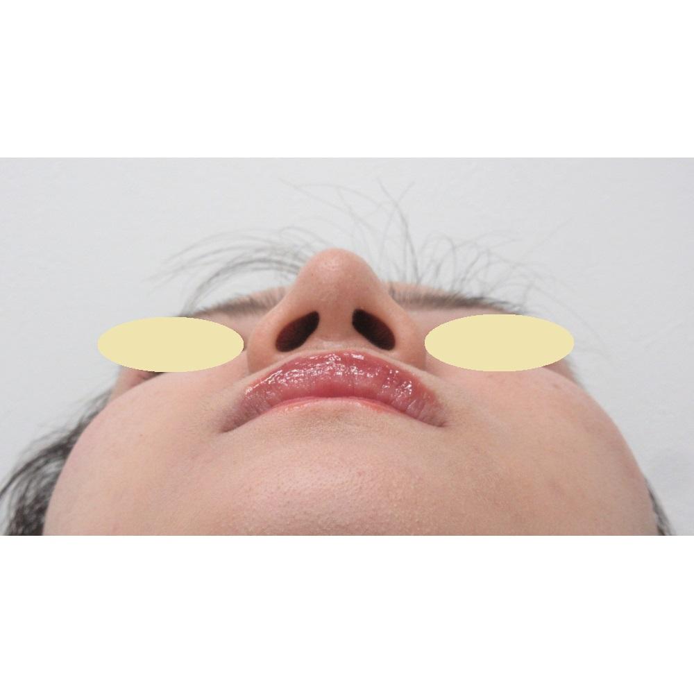 鼻尖縮小・耳介軟骨移植術後下