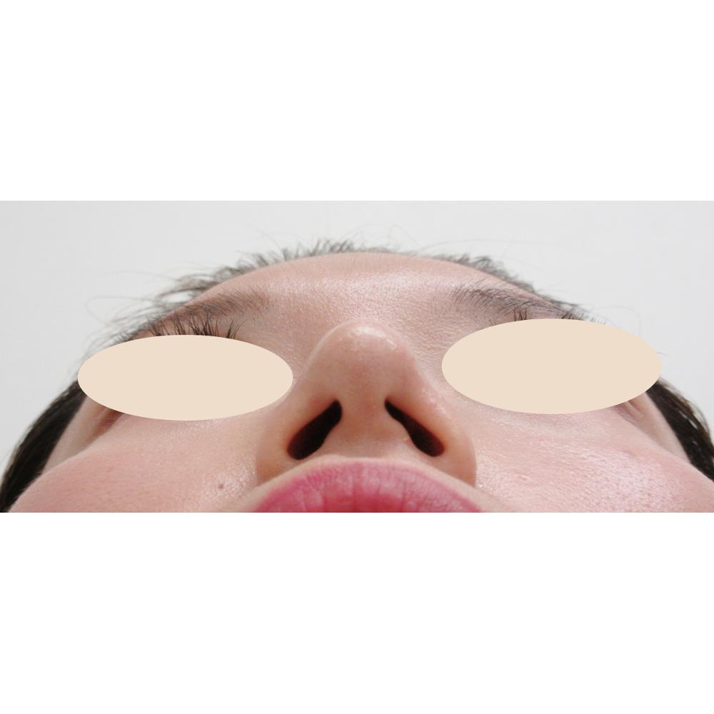 鼻線縮小・耳介軟骨移植術後下からの写真