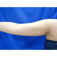 【脂肪吸引】二の腕全周(振袖・肩の張り出し+ひじ上+つけ根・背中)術前