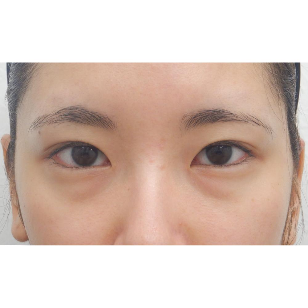 眼瞼下垂 術前