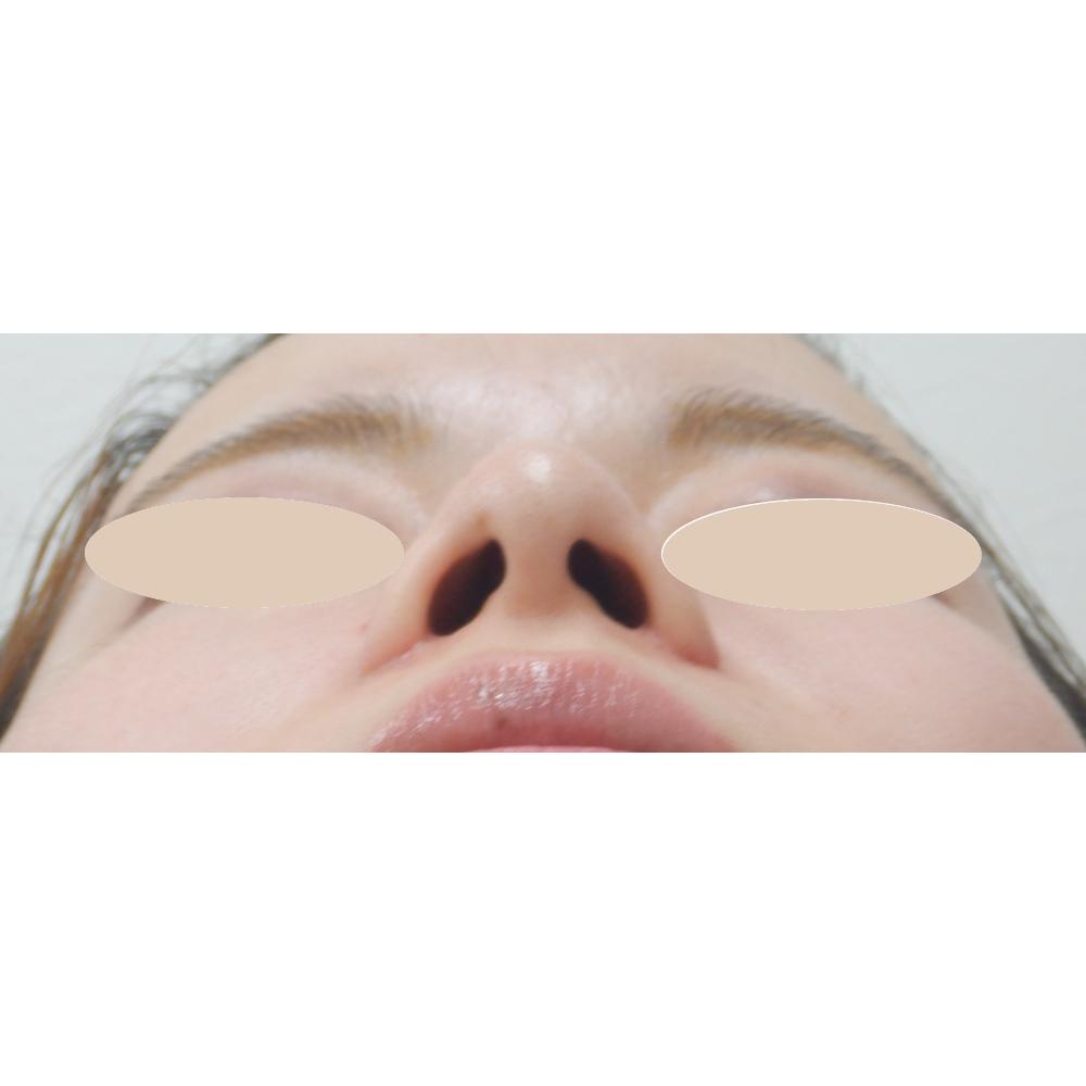 小鼻縮小術後下からの写真