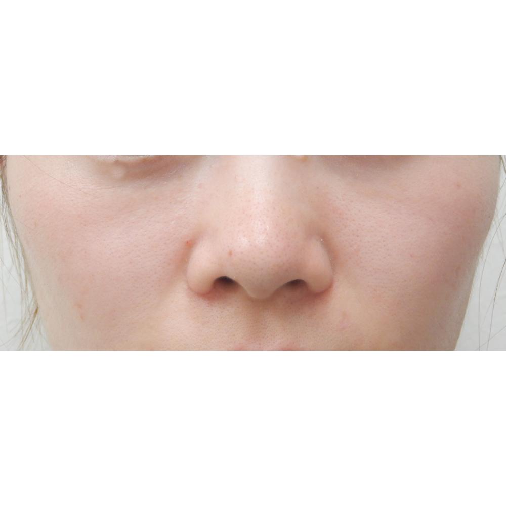 小鼻縮小術後正面からの写真