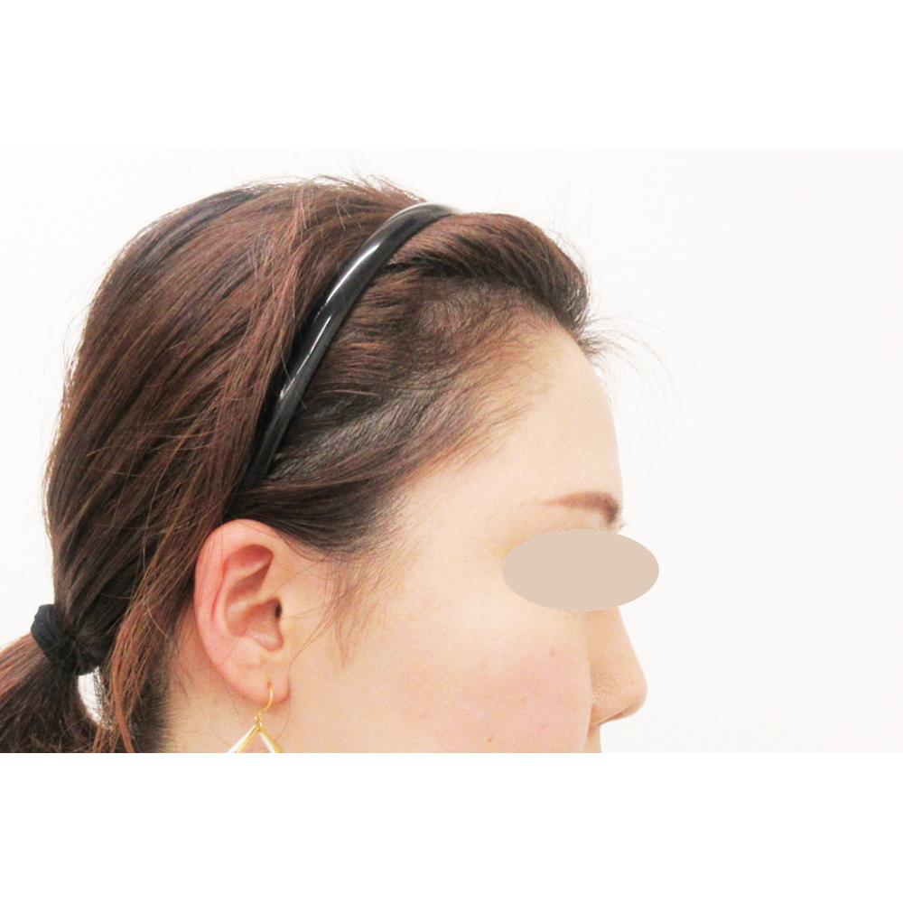 額のヒアルロン酸 施術前(横)