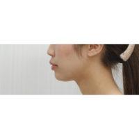 顎のプロテーゼ術前横