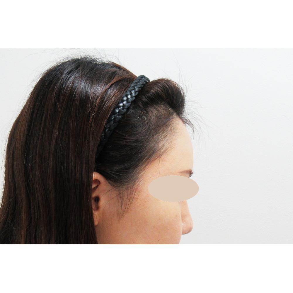 額のヒアルロン酸 施術後(横)