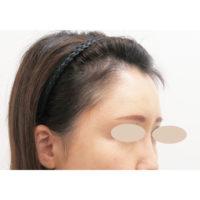 額のヒアルロン酸 施術前(ななめ)