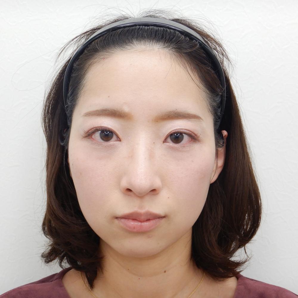 二重埋没法・目の上のヒアルロン酸 施術後(正面)