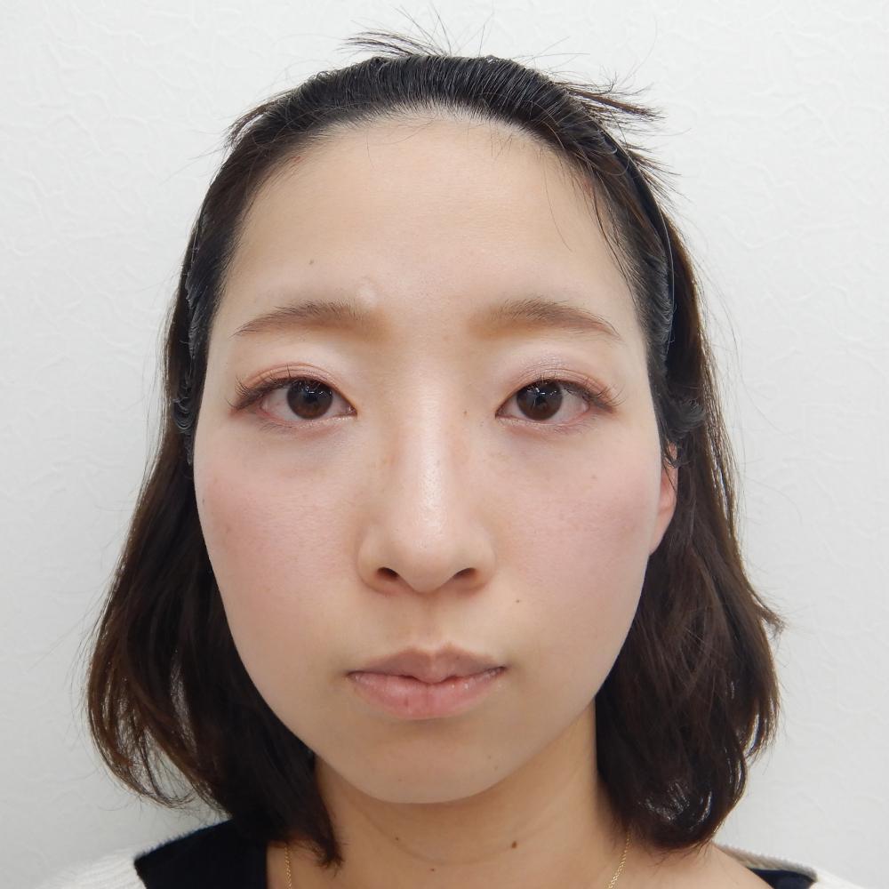 二重埋没法・目の上のヒアルロン酸 施術前(正面)