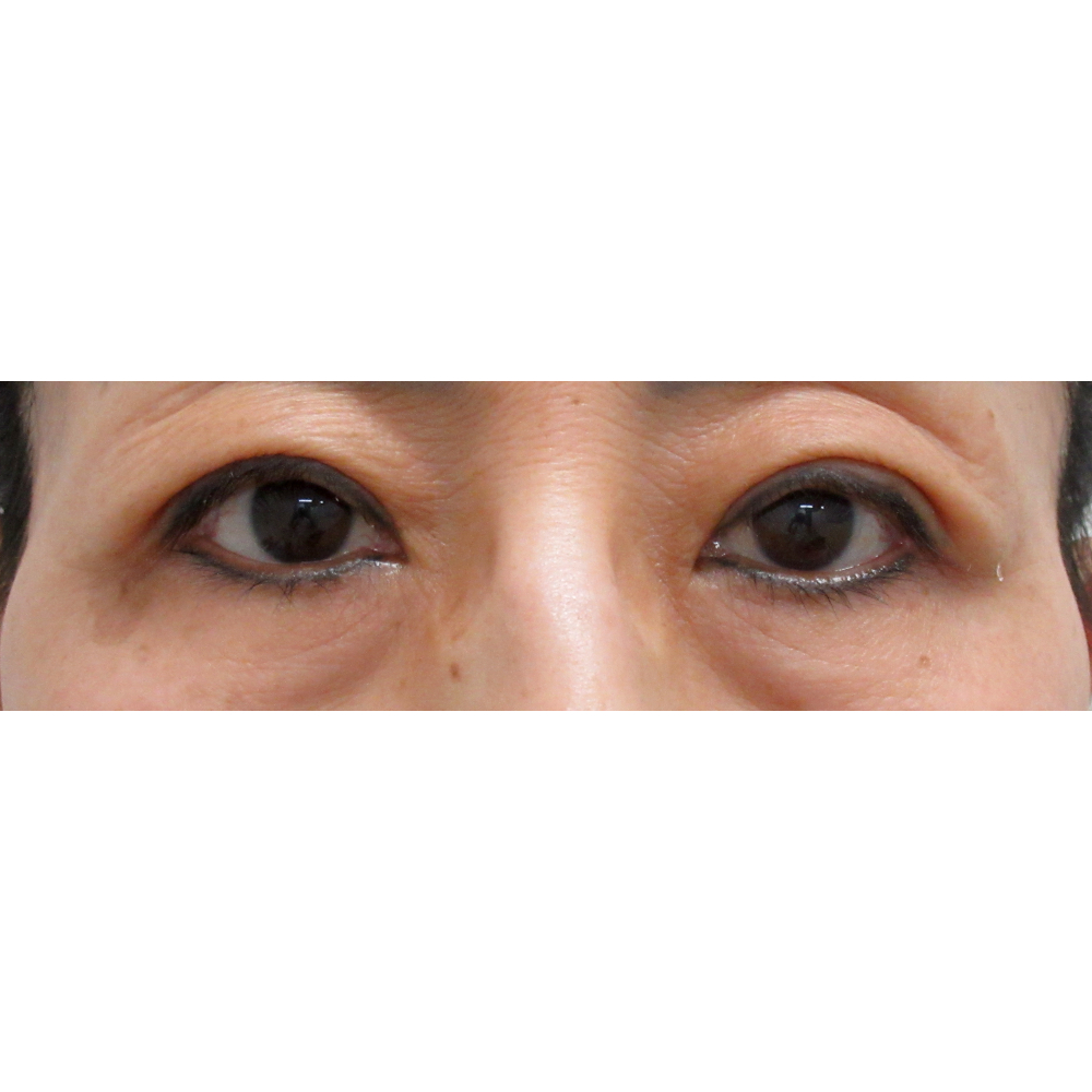 眼瞼下垂 術後
