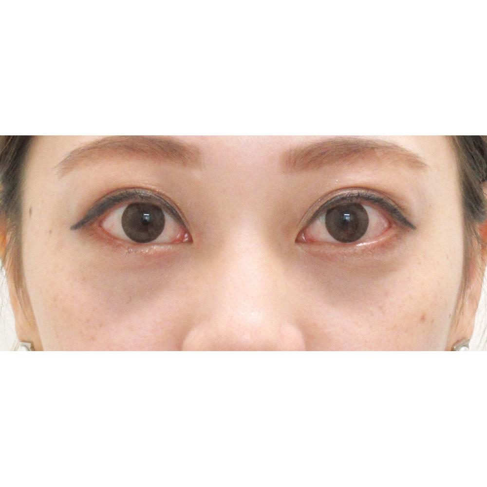 下眼瞼脱脂術後1ヵ月目