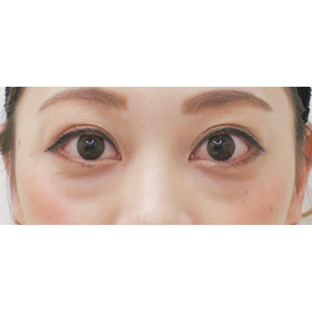 下眼瞼脱脂施術前