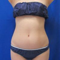 脂肪吸引施術前正面