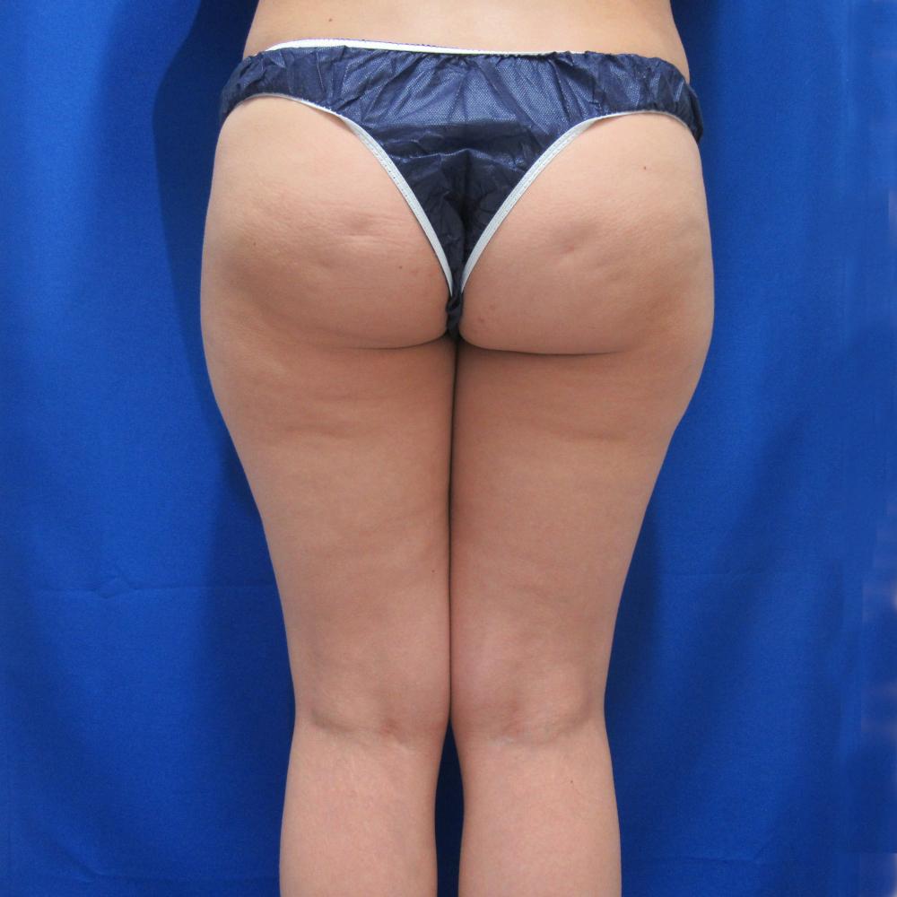 脂肪吸引施術前