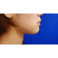 お顔の脂肪吸引術前の症例写真