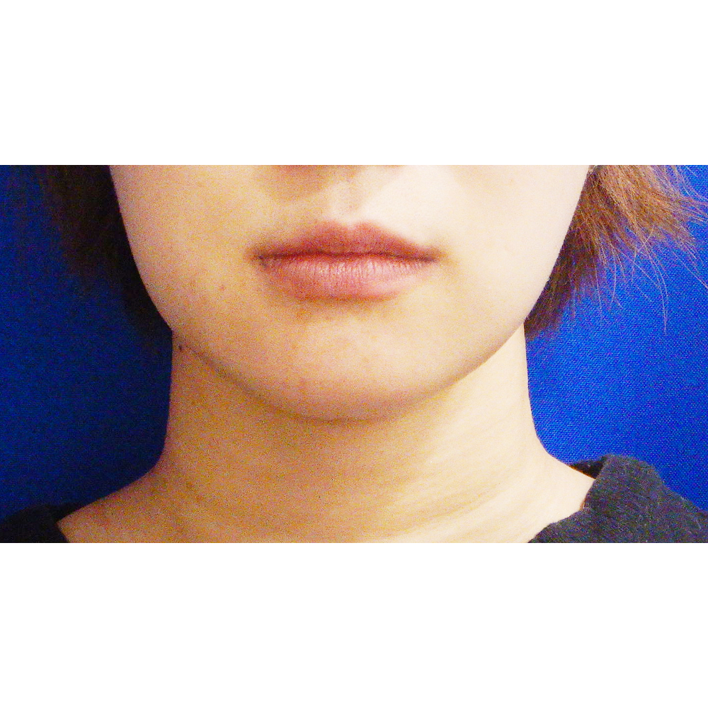 お顔の脂肪吸引施術後1ヵ月の症例写真