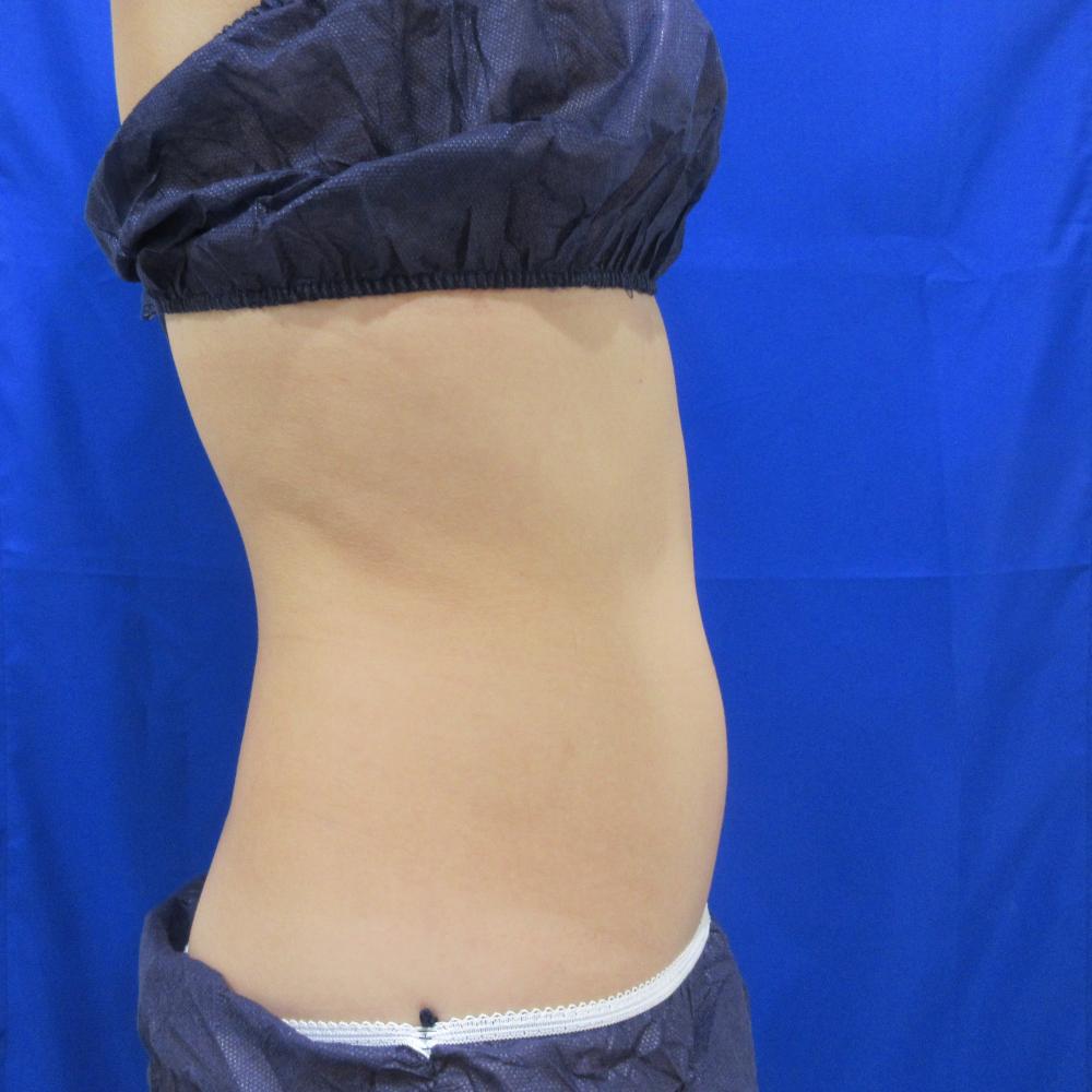 お腹の脂肪吸引術前症例写真