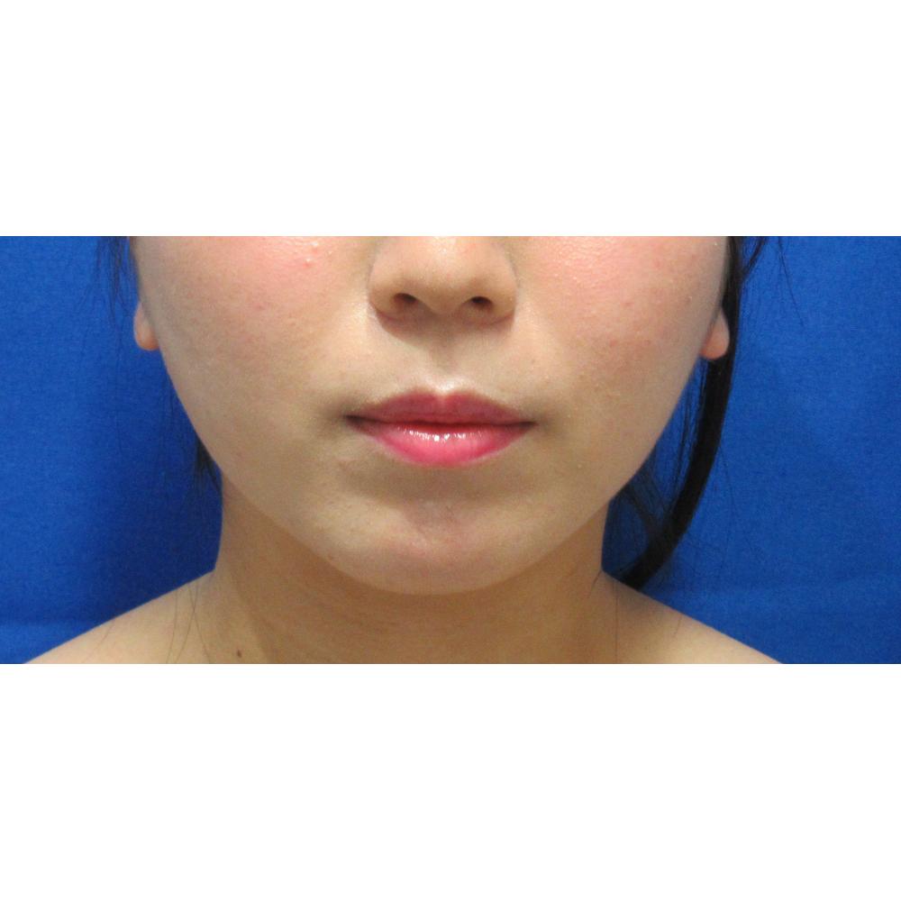お顔の脂肪吸引術後3カ月目の症例写真