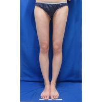 脂肪吸引の術後症例写真