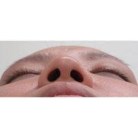 鼻尖縮小施術前