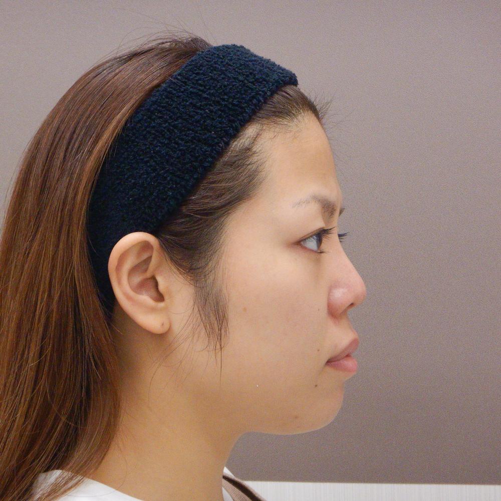 鼻プロテーゼ施術後