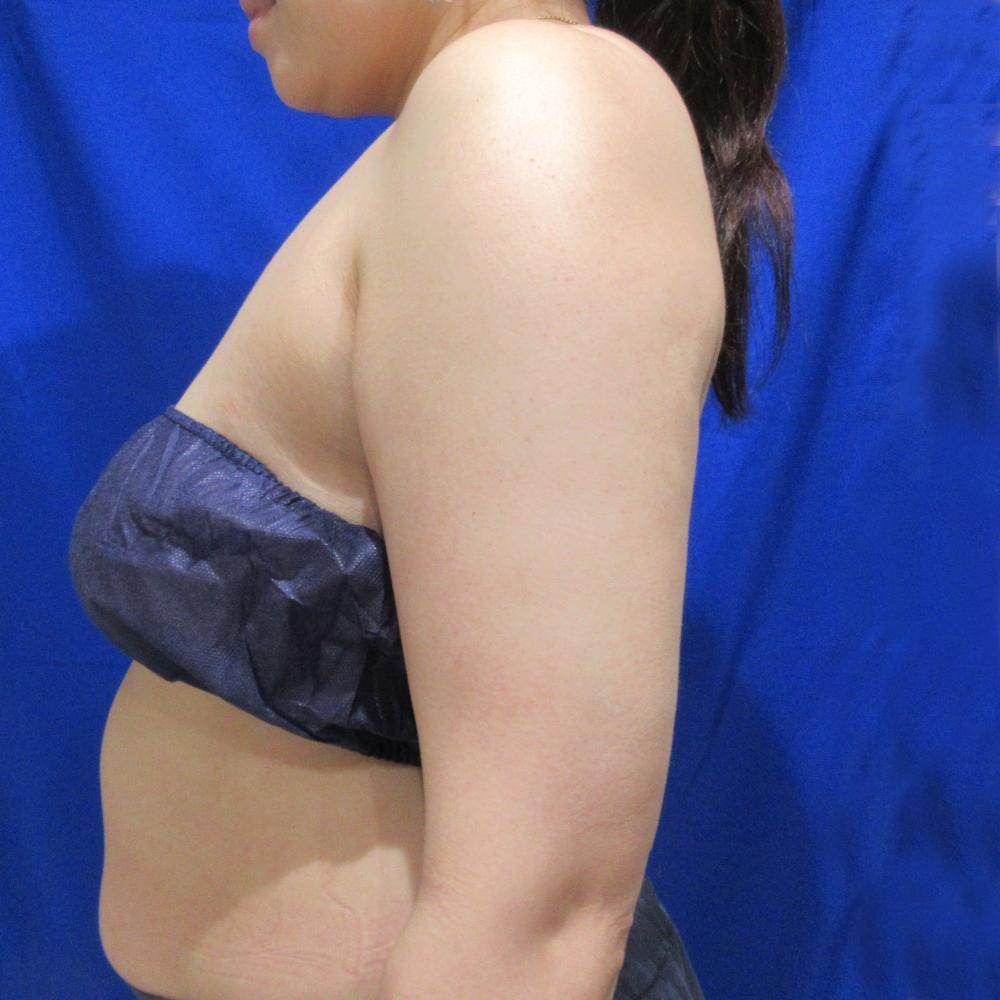二の腕脂肪吸引後横向き