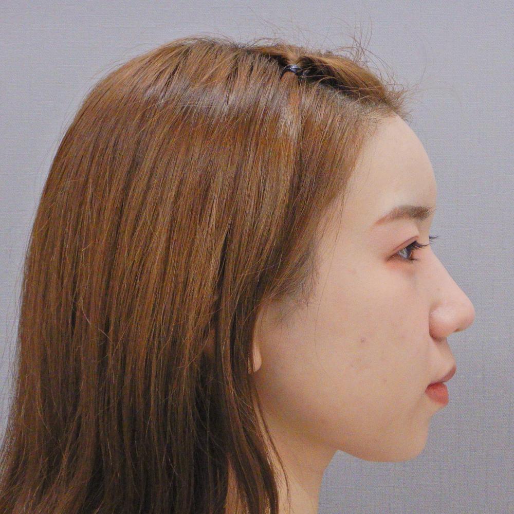 額のヒアルロン酸注入の症例写真(術後)