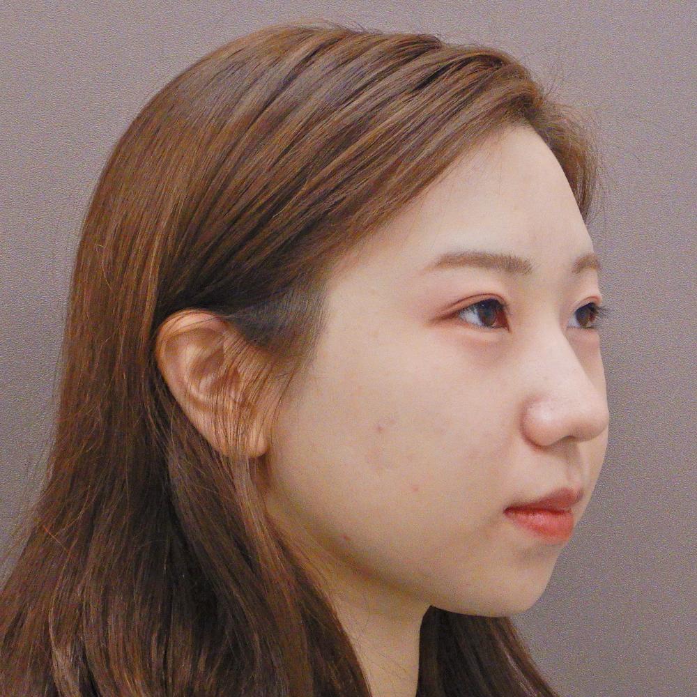 額のヒアルロン酸注入の症例写真(術前)