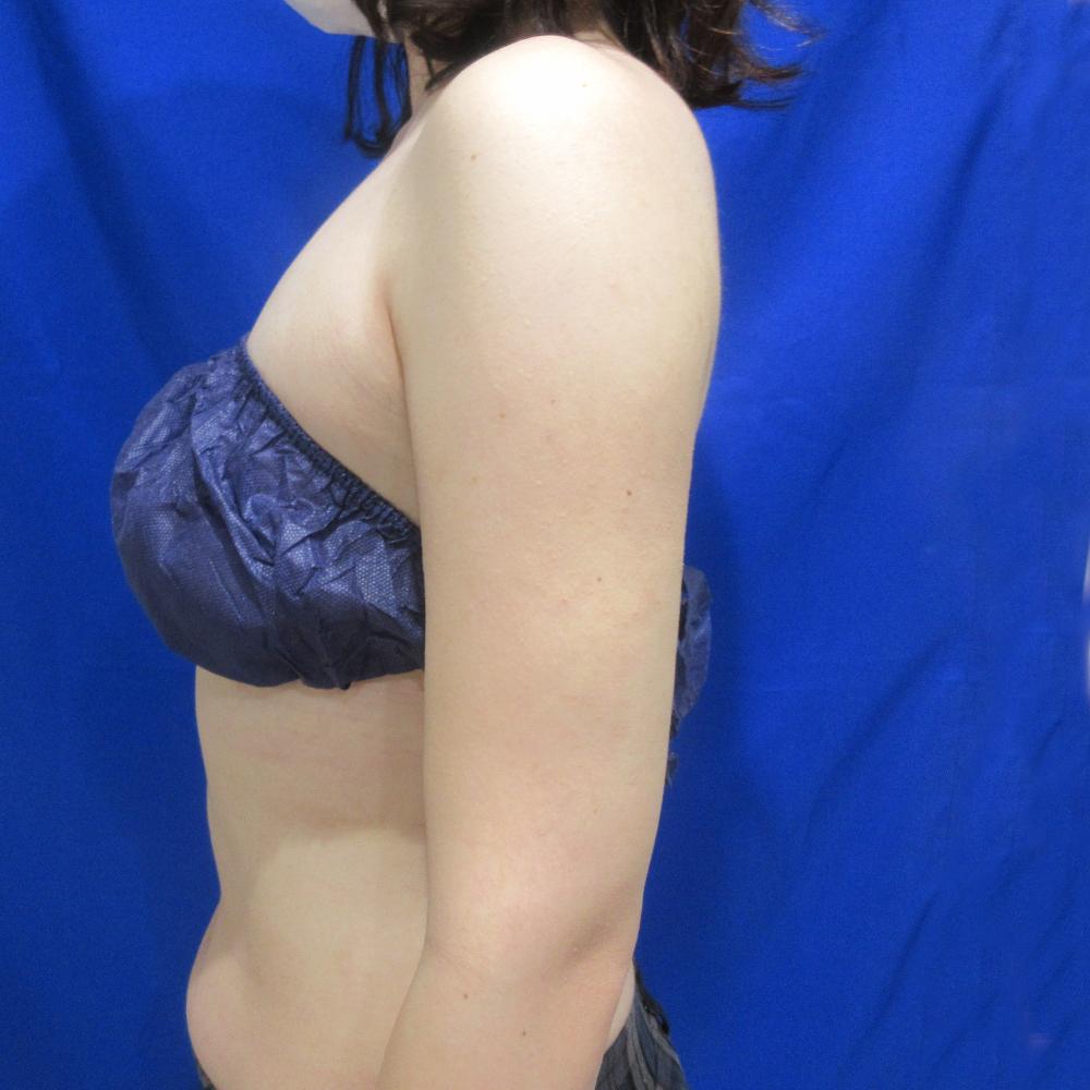 二の腕脂肪吸引施術後