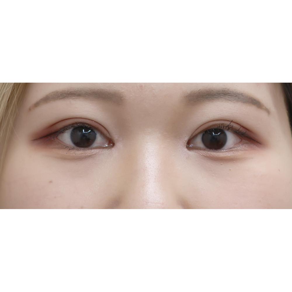 眼瞼下垂の術後1ヵ月目