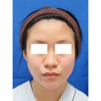 頬・顎の脂肪吸引エラのボトックス術前の症例写真