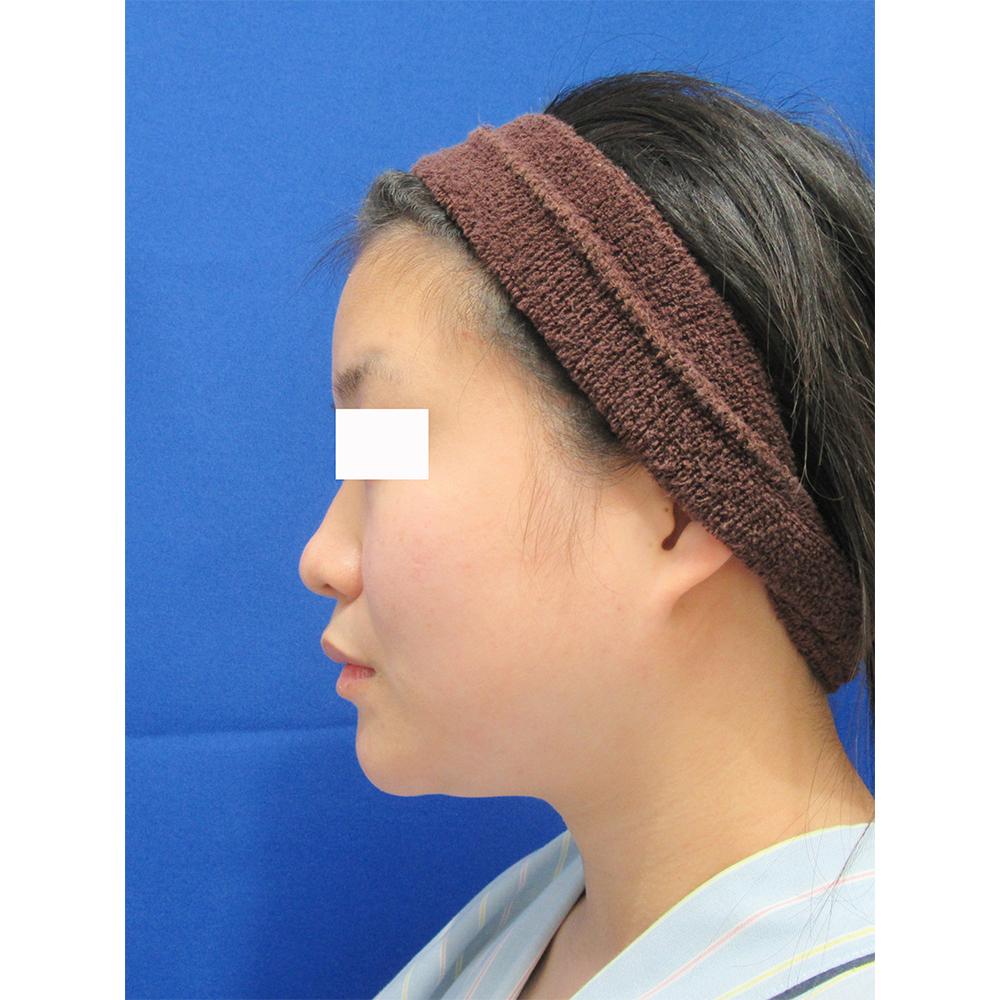 頬・顎の脂肪吸引とエラのボトックス術前の症例写真