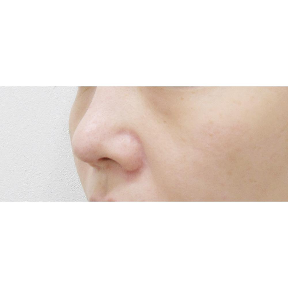鼻尖耳介術後の症例写真