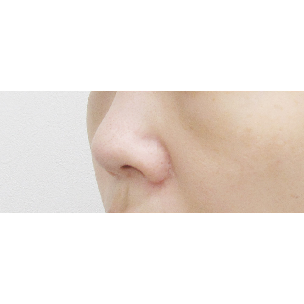 鼻尖耳介術前の症例写真