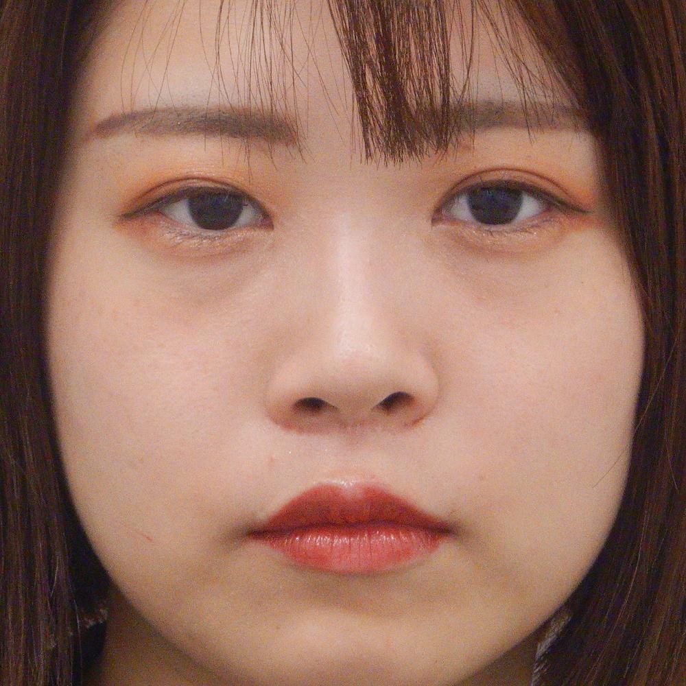 鼻プロテーゼ施術前