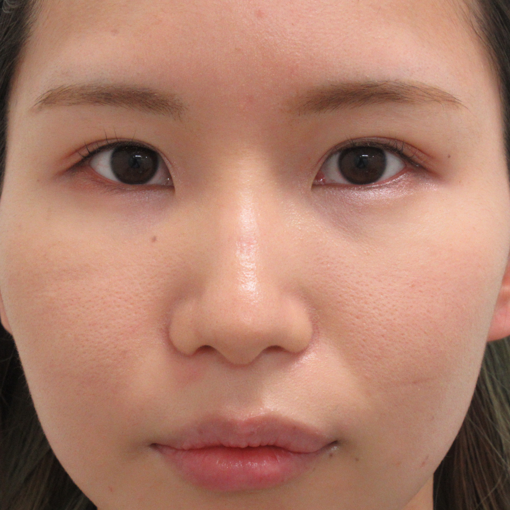 小鼻縮小施術後