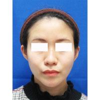 頬・顎の脂肪吸引とエラのボトックス術後の症例写真